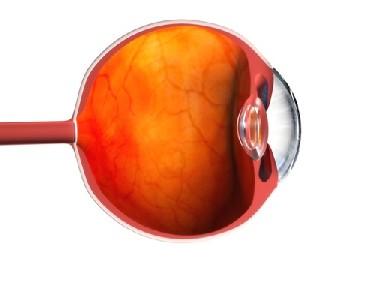 예쁜 눈망울 얻으려다 발병한 각막염, 증상 완화에 좋은 음식은?