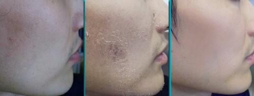 여드름&흉터 치료, 원장이 먼저 임상 대상이 되는 피브로 한의원 잠실점