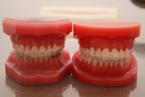 치아교정 기간, 비용 부담될 때 앞니 부분교정