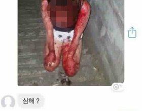 """부산 여중생 폭행, 피해자 사진 접한 대중 분노 """"저정도면 살인미수"""""""