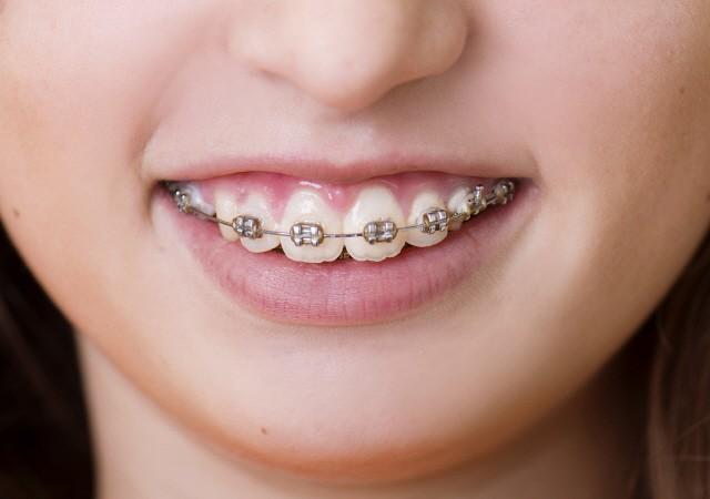 아름다운 미소와 치아 건강을 위한 교정치료, 진단부터 유지 관리까지
