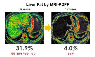 MRI-PDFF 검사 전후 비교