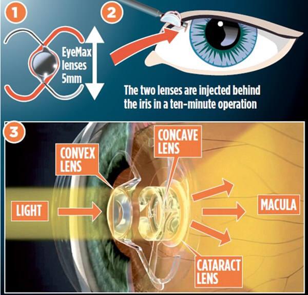 노인성황반변성에 의해 점진적 시력 상실로 고통받고 있는 사람들이 사물을 온전히 볼 수 있게 해주는 렌즈 이식기술이 개발됐다. 의사인 보비 쿼레시와 광학전문가인 파블로 아탈 스페인 무르시아대 교수에 의해 개발됐다. 한쪽눈을 시술하는 비용이 1천600만원이다.사진=유튜브 아티클스튜브