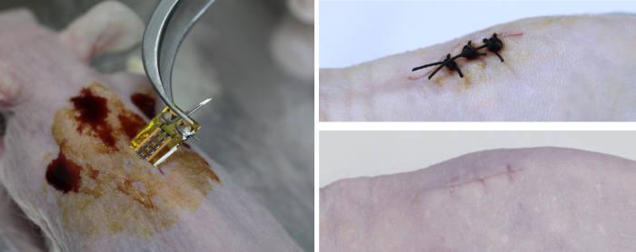 제작된 유연한 인체삽입용 태양전지를 간단한 피부 시술을 통해 쥐 피하에 삽입하는 사진(좌측), 인체삽입용 태양전지를 피하에 삽입 후 절개한 피부를 봉합한 직 후 모습과 삽입 시술 후 봉합선을 제거하고 2주 뒤 상처가 치유된 모습(우측)
