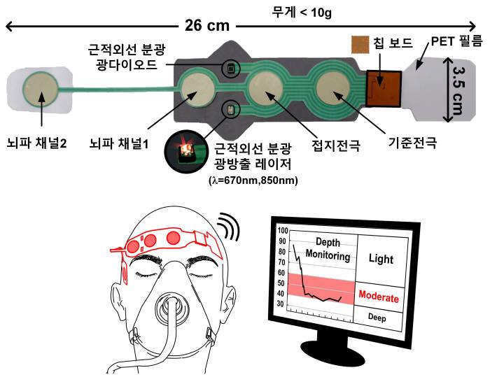 KAIST가 개발한 마취 심도 모니터링 측정기 센서 모식도