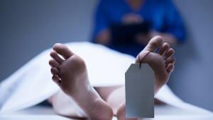 사망후 10분간 뇌활동…`사후경험은 뇌의 환각` 주장 뒷받침