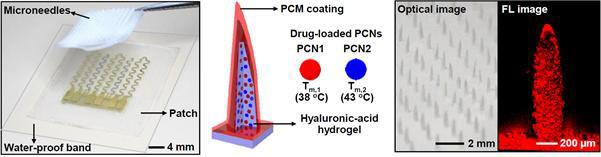 미세 약물침 기반의 약물전달 시스템(좌), 약물이 담긴 열 감응 미세 약물침의 구조(중), 확대 이미지(우).