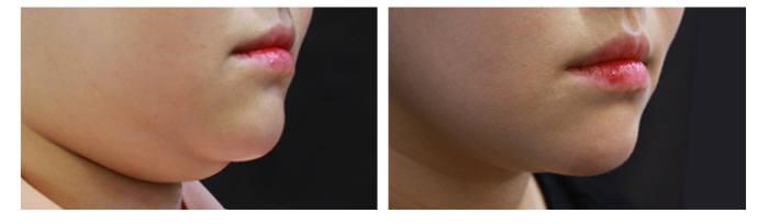 아름다운나라피부과 이중턱 치료 전후 변화 모습