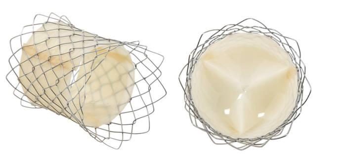 자가확장형 폐동맥 인공심장판막과 스텐트