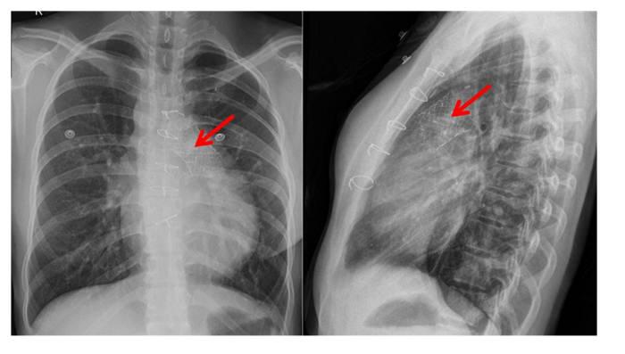 인공심장판막이 폐동맥판막 부위에 이식된 사진