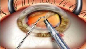 [첨단 수술 현장을 가다]<3>사고의 전환으로 눈 건강 지킨다..안구 내 조명술 각광
