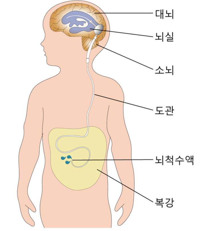 뇌척수액의 흐름을 복강으로 이어주는 션트수술