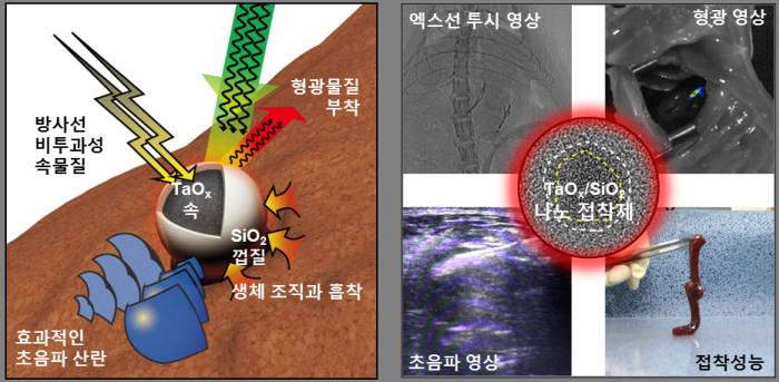 [의료바이오]IBS, 조영제·지혈제 역할 '나노 접착제' 개발