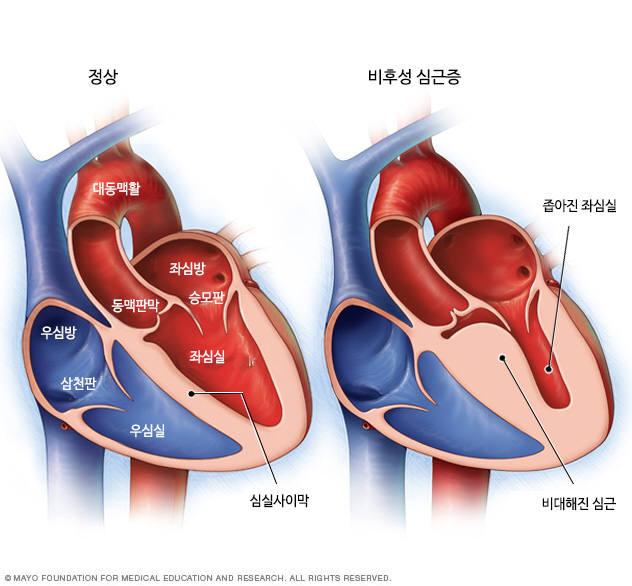 비후성 심근증 증상과 원인