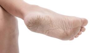 '당뇨 발' 증상, 초기에 잡아내는 '스마트 매트' 등장