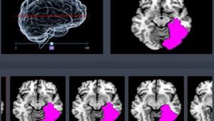 '뇌졸중 진단' 딥러닝 인공지능 의료기기 임상시험계획 식약처 승인