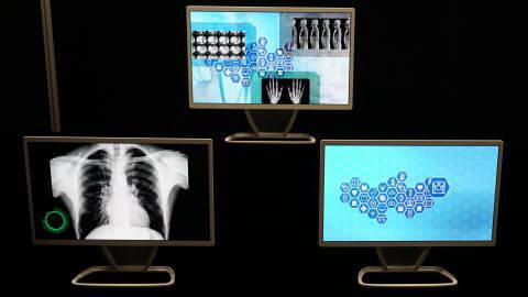 JOLED가 잉크젯 프린팅 공정으로 출시한 21.6인치 의료용 4K OLED 모니터 (출처=KJCLUB)