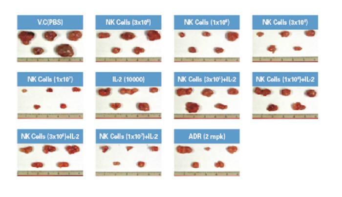 NK세포를 이용한 치료제를 투여했을 경우와 대조군의 암세포 상황을 비교한 모습