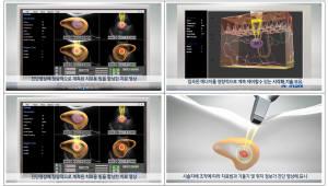 [주목할 우수 산업기술]초음파 치료용 빔·치료 영역 시각화 기술