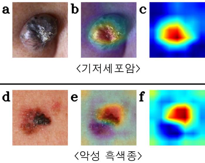 피부 종양 임상 및 인공지능 모델 인식 사진