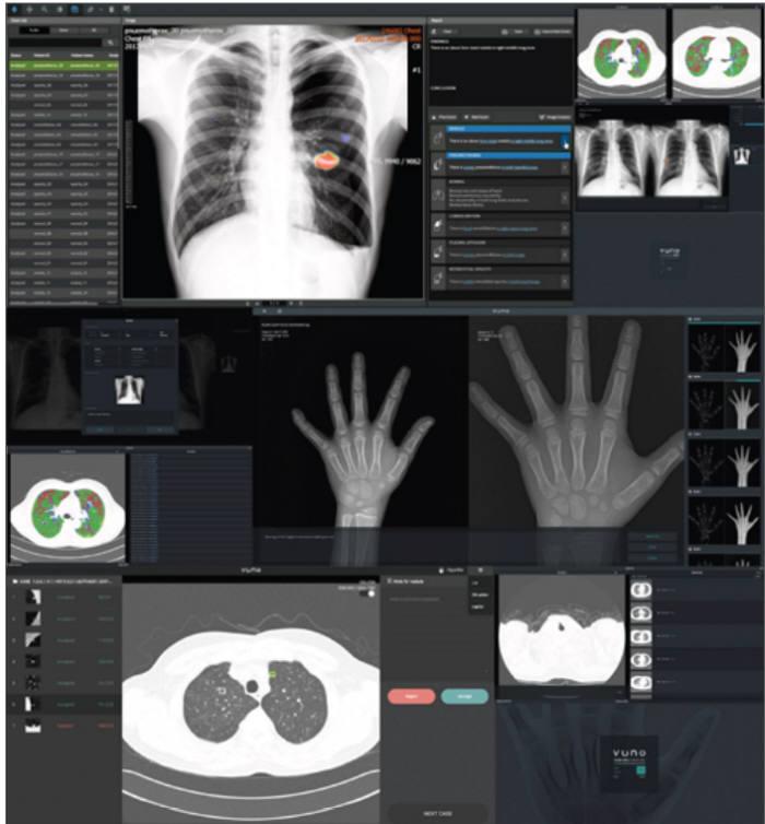 뷰노가 개발한 AI 기반 뼈나이 진단 솔루션 '뷰노 메드 본에이지'