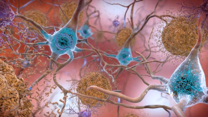 알츠하이머 치매는 베타아밀로이드 단백질(갈색)이 비정상적으로 증가해 서로 뭉쳐 플라크를 형성해 일어나는 것으로 알려져 있다. (출처: National Institute on Aging, NIH)