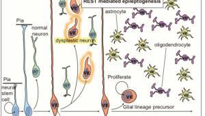 KAIST, 뇌전증 동반 소아 뇌종양 근본원인 밝혀
