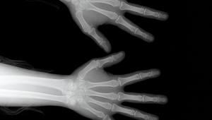 [과학핫이슈]뢴트겐과 엑스선