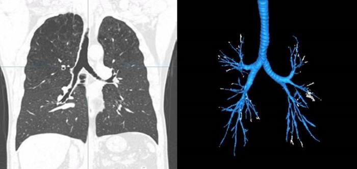 흉부 CT사진(왼쪽)과 기관지 AI 분석 결과(오른쪽)