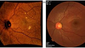 GIST, 망막이나 미세한 혈관 3차원 고해상도 영상 레이저 개발