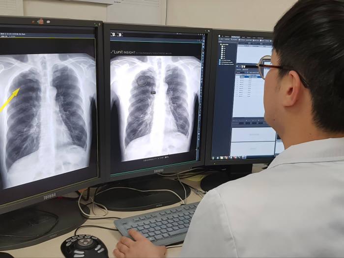 서울대병원 의료진이 AI 의료영상 판독 지원 솔루션 루닛 인사이트를 활용해 폐 질환 병변을 확인하고 있다.
