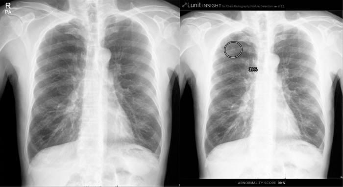 일반 흉부 엑스선 영상(왼쪽)과 루닛 인사이트 실행화면(오른쪽)