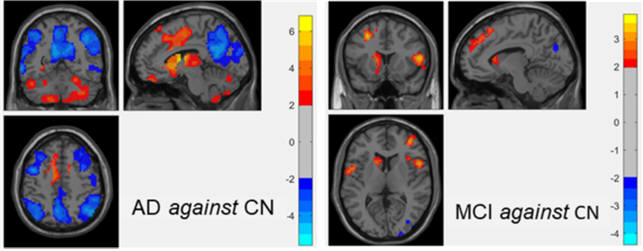 정상인 대비 치매환자군 및 정상인 대비 경도인지장애군의 뇌내 네트워크 활동성 비교.