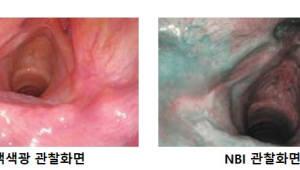 '암 예방의 날', 내시경으로 두경부암 조기검진 필요