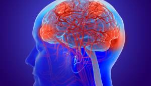 바이오젠, 알츠하이머 치료제 임상 중단...주가 폭락