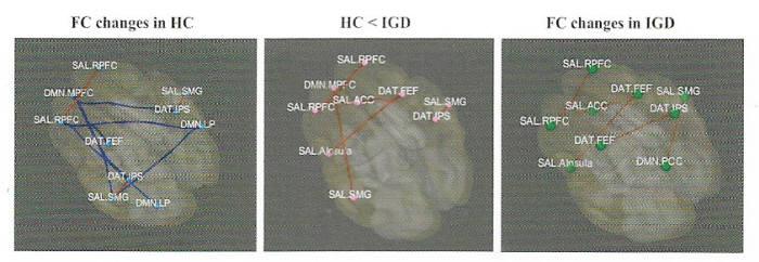 게임과몰입군 뇌연결성은 ADHD와 유사하다