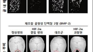 전남대·GIST, 골다공증 막는 치료 타겟 발굴...항상성 조절 핵심인자 찾았다