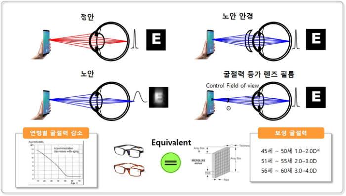픽셀로 솔루션은 수정체 조절력을 보완, 망막에 초점이 정확히 맺히도록해 노안을 보정한다.