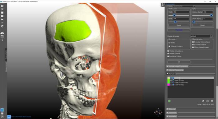 인텔리코리아는 의료바이오분야 3D프린팅 전문 인력 양성을 위한 교육과정을 마련했다.