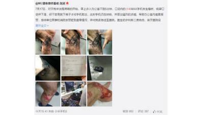 샤오미 스마트폰 폭발…피해자 2도 화상 응급실행
