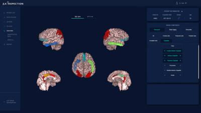 제이엘케이인스펙션, 뇌 노화 측정 솔루션 'ATROSCAN' 식약처 인증 획득