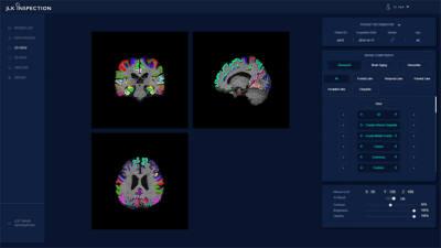 제이엘케이인스펙션, AI 기반 뇌 노화 측정 솔루션 의료기기 인증 획득