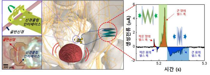 DGIST 연구팀이 개발한 신경조절 인터페이스를 적용한 신경자극기 삽입모식도 및 실제 모습(왼쪽)과 신경자극전류 흐름 그래프.