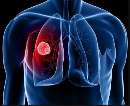 폐건강과 면역력 위한 건강관리 필요