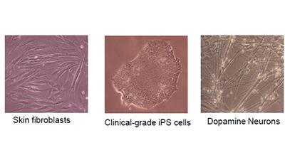 파킨슨병 임상치료 세계 첫 성공…환자 맞춤 줄기세포 통했다