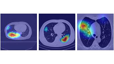 AI로 코로나 환자 CT영상 진단…정확도 99% 수준