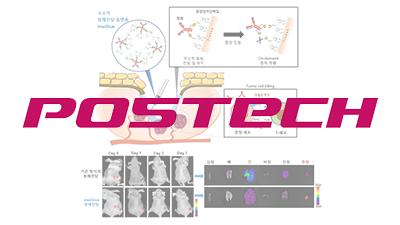홍합접착단백질로 암세포에만 항체 전달