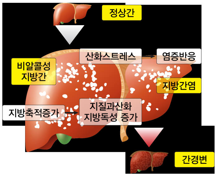 비알콜성지방간 생성 경로