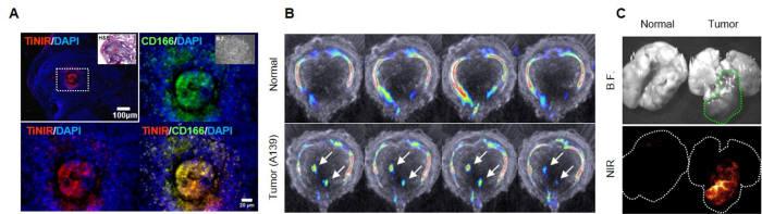 타이니어를 통한 종양근원세포 시각화