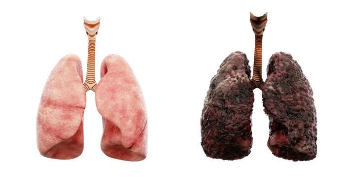 폐에도 계면활성제가 있고 이는 호흡에서 중요한 역할을 담당한다. 액상형 전자담배는 이런 폐의 기능을 망가뜨리는 것으로 보인다. (출처: shutterstock)